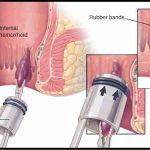 Ligadura Con Bandas Elásticas Para Las Hemorroides
